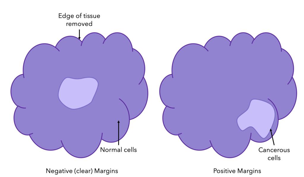 A Diagram Showing Breast Cancer Margins (Negative (clear) vs Positive)